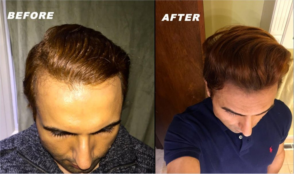 What to use for receding hairline